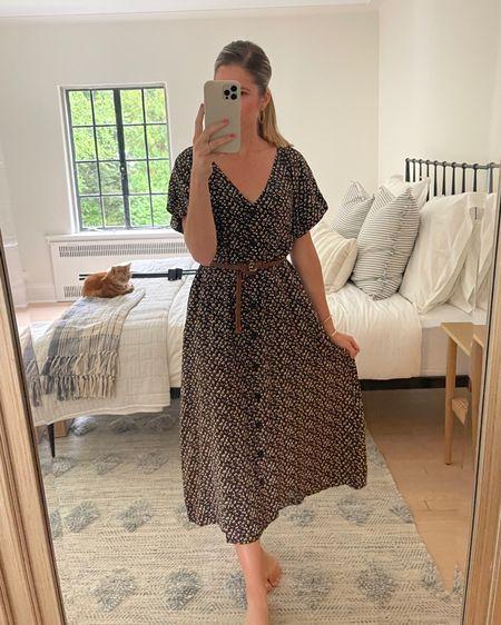 Casual dresses http://liketk.it/3jDWK @liketoknow.it #liketkit #LTKstyletip