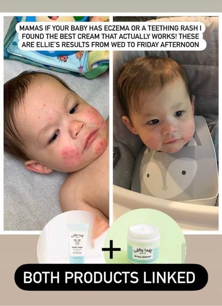 Baby skin care. Baby eczema cream. Tubby Todd skincare. Toddler skincare.   #LTKbaby #LTKkids